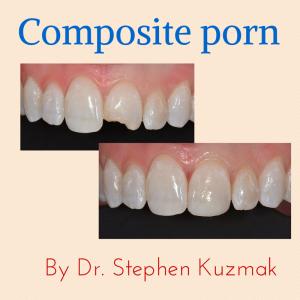 Steve's composite porn