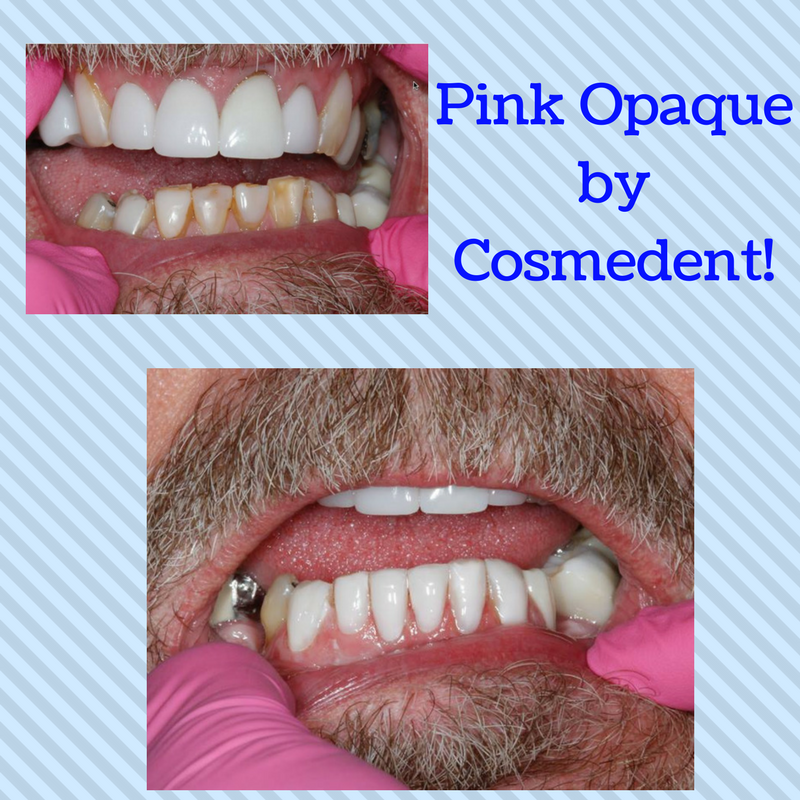 Pink Opaque by Cosmedent!