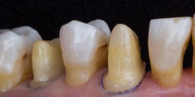 In defense of dental Instagram